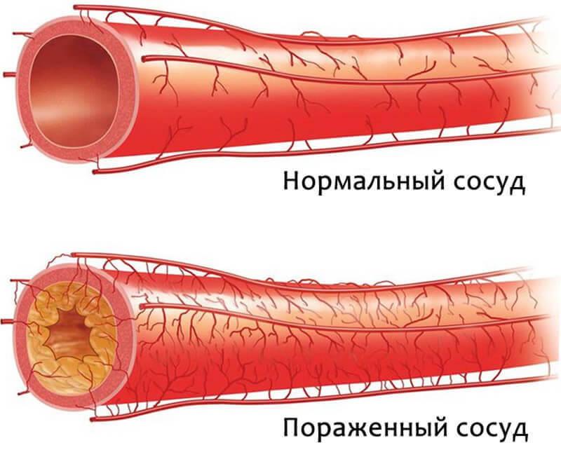 Старое немецкое средство поможет быстро очистить артерии и укрепить организм