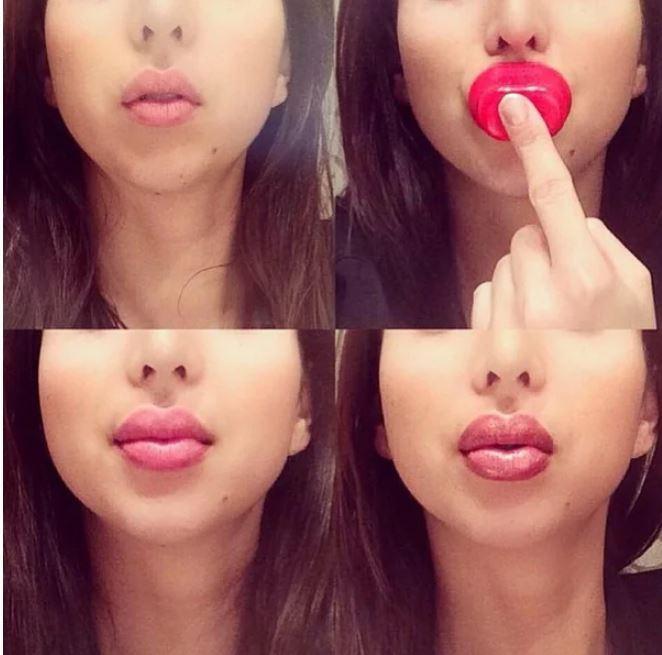Вот к чему может привести неудачное увеличение губ
