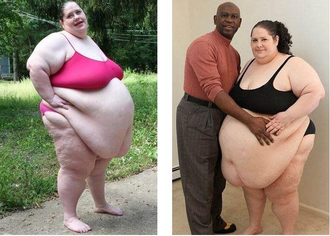 Как выглядят любимые половинки людей с ожирением