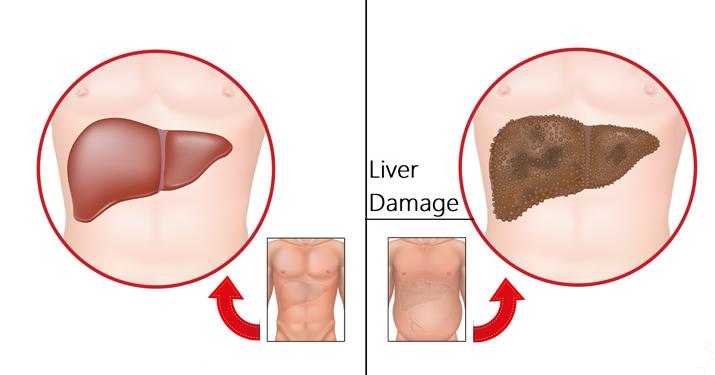 7 ранних предупреждений о повреждении печени, которые вы никогда не должны игнорировать…